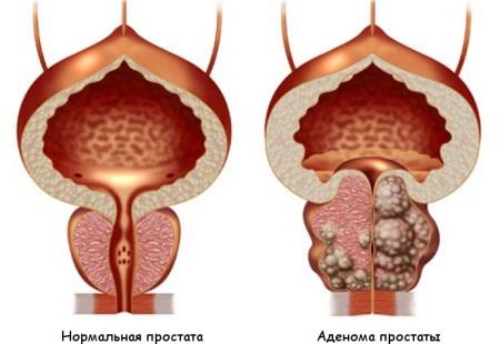 Лечение хронического простатита у мужчин: лекарства
